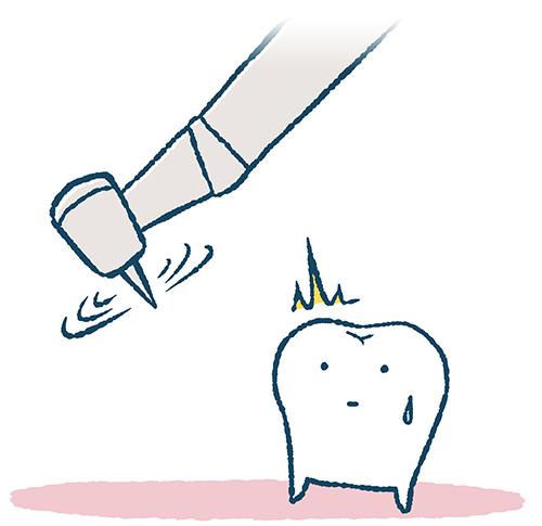 削られそうな歯