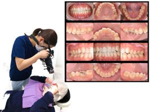 美里歯科の1年メンテナンス・口腔内写真